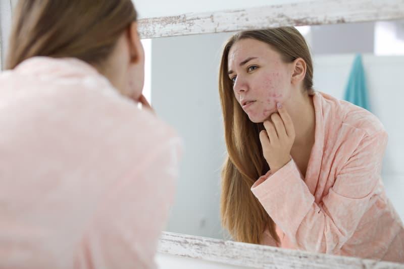 Eine Frau sieht Probleme mit der Haut im Spiegel und möchte CBD anwenden